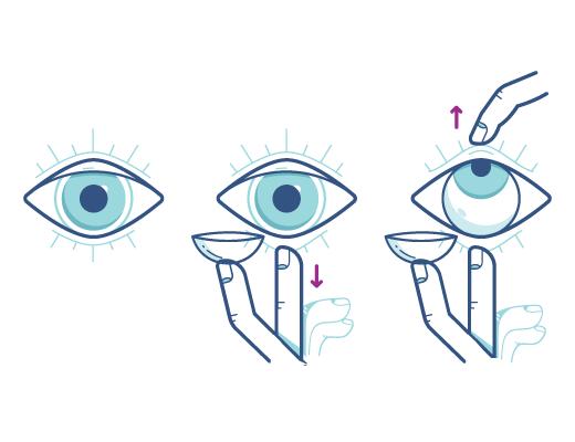 Befolgen Sie die Anleitung zum Einsetzen der Kontaktlinse in Ihr Auge