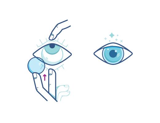 Testen Sie unsere Technik um Ihre Kontaktlinse im Auge zu platzieren