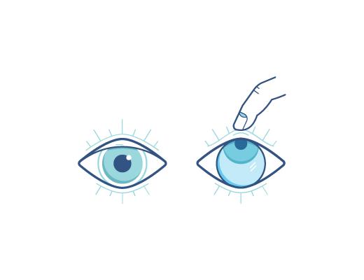 Schauen Sie nach oben, wenn Sie Ihre Kontaktlinsen herausnehmen.