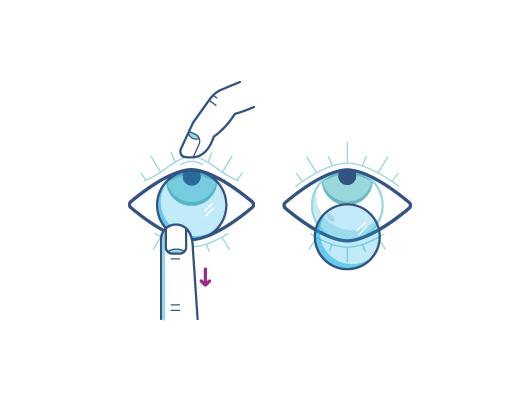 Ziehen Sie mit dem Zeigefinger die Kontaktlinse an der Unterkante der Linse vorsichtig nach unten, um sie zu entnehmen.