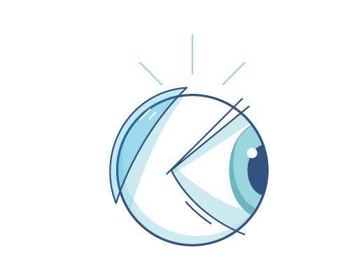 Illustration einer Kontaktlinse, die hinter das Auge rutscht.