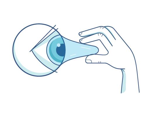 Kontaktlinsen vom Auge absetzen.