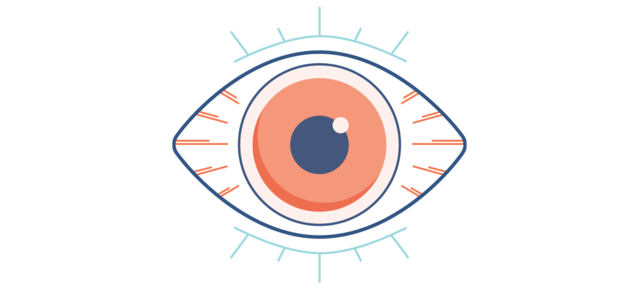Illustration eines trockenen, roten Auges