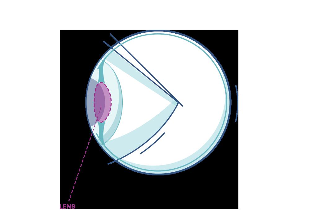 Illustration eines Auges mit Makierung der Linse