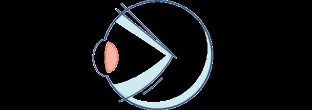 Darstellung eines Augapfels mit einer verdickten Linse