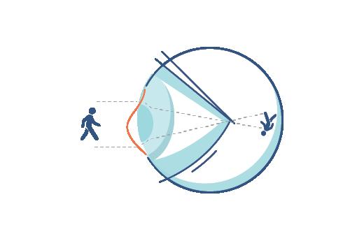 Illustration eines Auges mit Hornhautverkrümmung