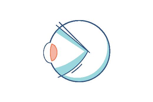 Illustration eines Auges mit Presbyopie
