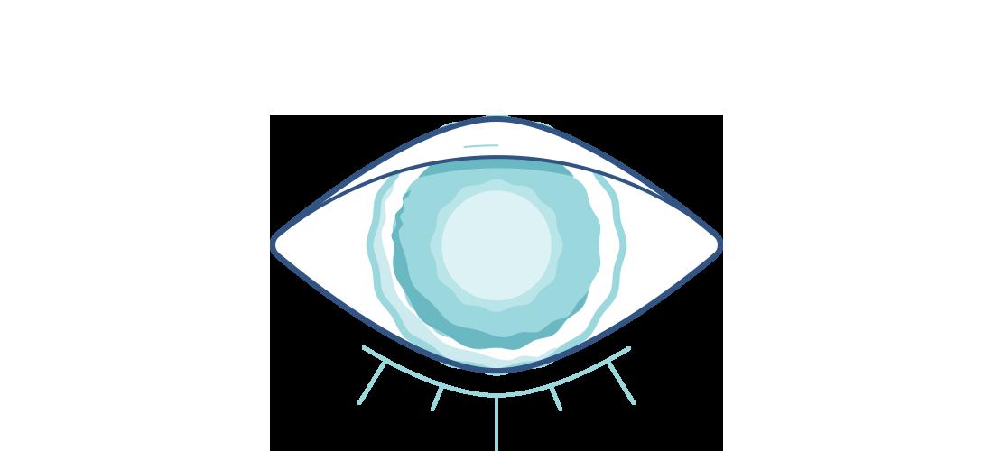 Illustration eines Auges mit getrübter Linse