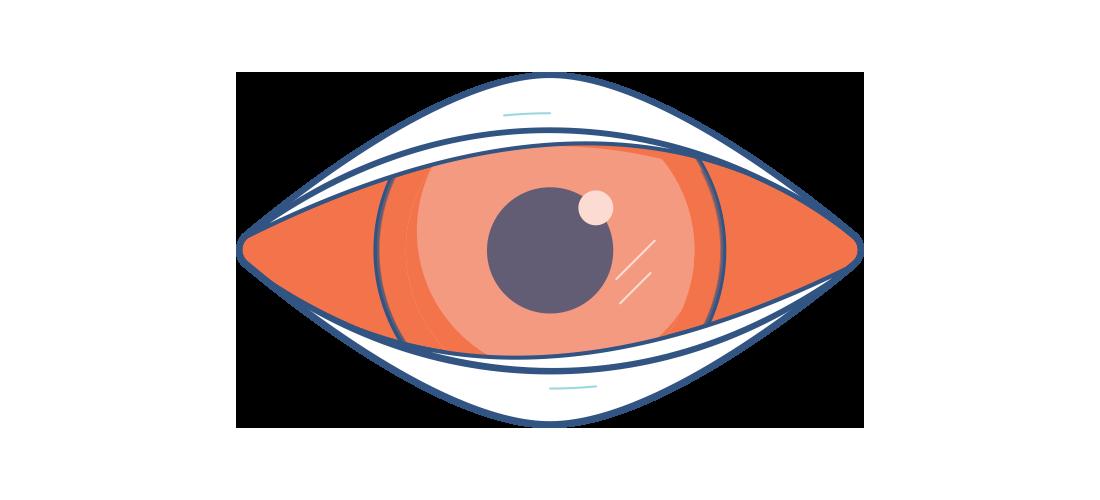 Illustration eines entzündeten Auges
