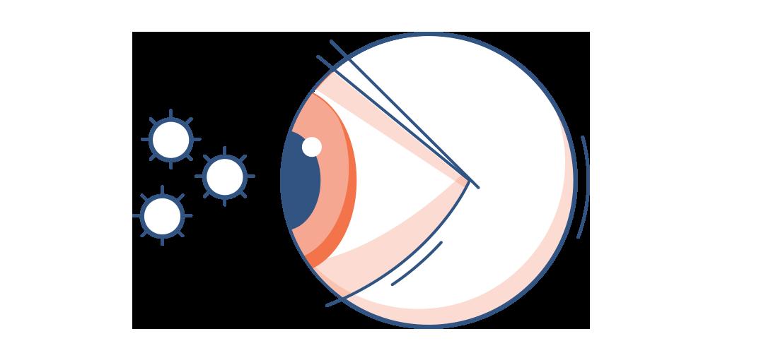 Illustration eines Auges mit Pollen in der Luft