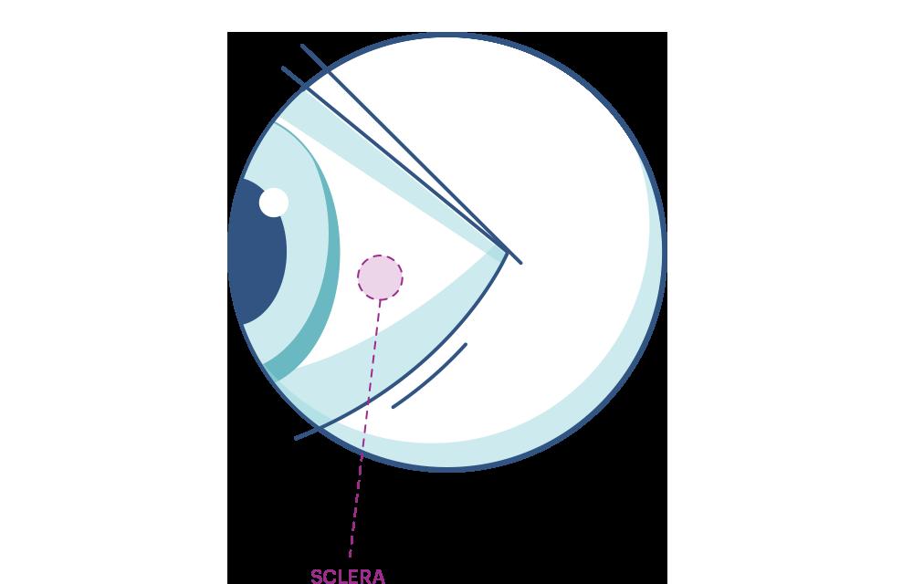 Illustration eines Auges mit Markierung der Lederhaut